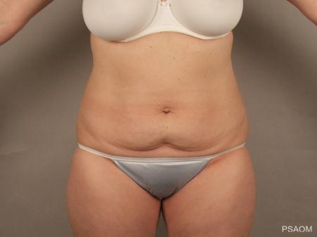 Tummy Tuck: Patient 1 - Before Image 1