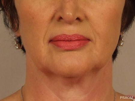 Injectables - Face: Patient 1 - Before Image
