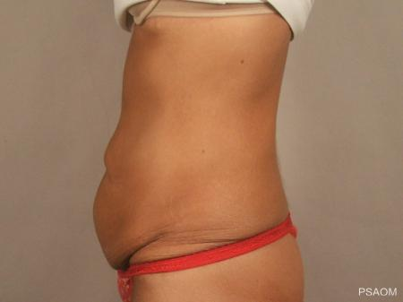 Tummy Tuck: Patient 4 - Before and After Image 2