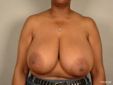 Breast Reduction: Patient 9 - Before Image