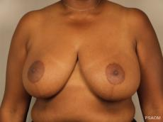 Breast Reduction: Patient 9 - After Image