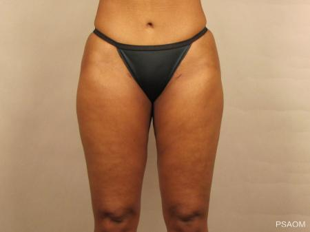 Liposuction: Patient 1 - After Image