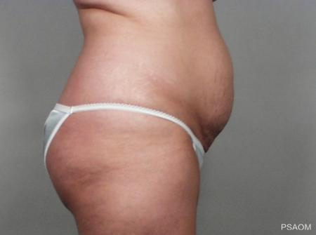 Tummy Tuck: Patient 5 - Before and After Image 2