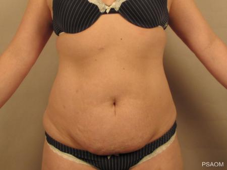 Tummy Tuck: Patient 3 - Before Image