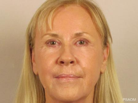 Laser Skin Resurfacing - Face: Patient 1 - After Image