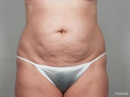 Tummy Tuck: Patient 5 - Before Image