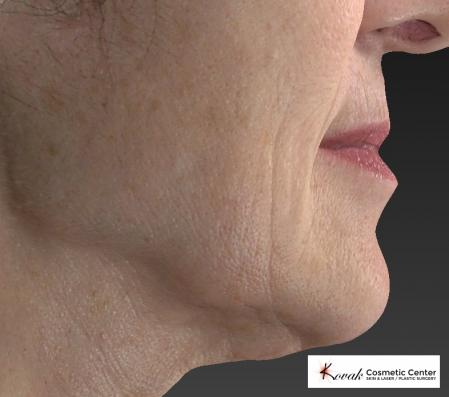 Restylane® Silk: Patient 2 - Before Image 2