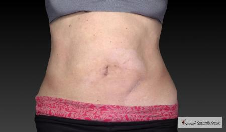 CoolSculpting®: Patient 18 - Before