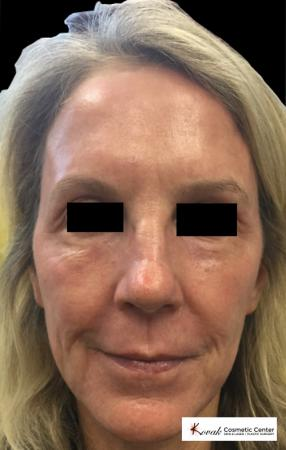 Laser Skin Resurfacing - Face: Patient 2 - After Image