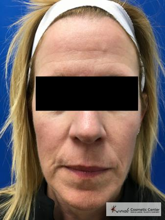 Sculptra Treatment on a 53 year old female patient - Before Image