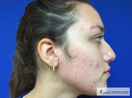 Peels: Patient 2 - Before Image