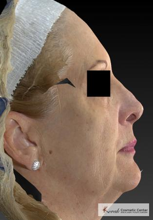 Sculptra®: Patient 6 - Before Image