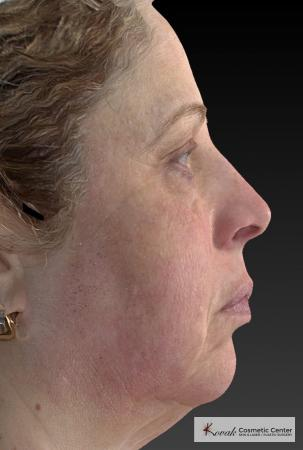 Tyte And Bryte – Face: Patient 3 - After Image