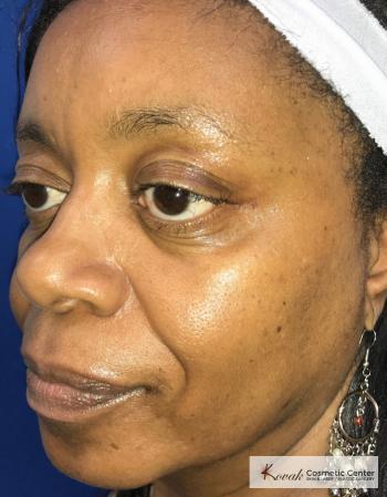 Lip Augmentation: Patient 1 - After 2