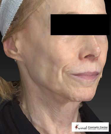 Sculptra®: Patient 1 - Before 3