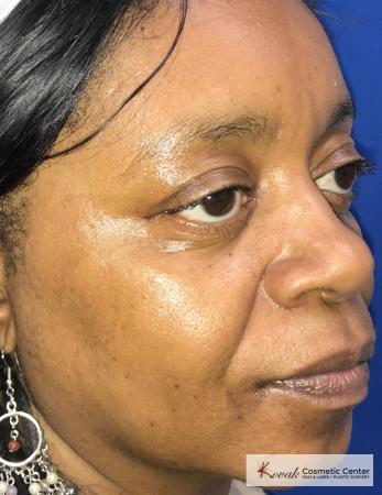 Lip Augmentation: Patient 1 - After 3