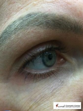 Eye Vein Treatment on a 39 year old female using the CoolTouch Varia - Before