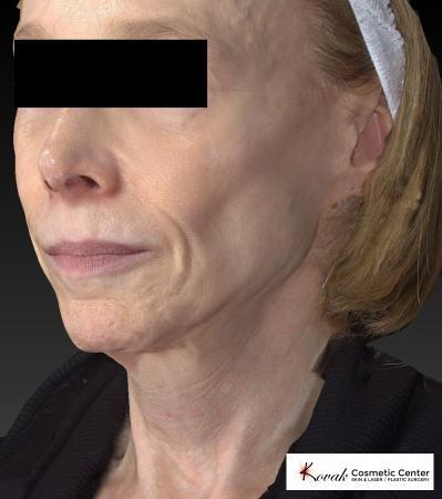 Sculptra®: Patient 1 - Before 4
