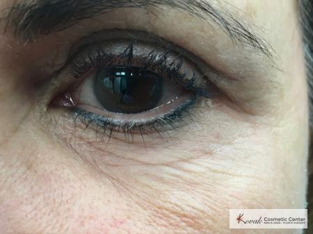 Under Eye Wrinkle Treatment with Agnes - Before and After 2