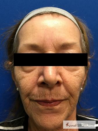 Full Face Laser Skin Resurfacing on a 70 year old woman - Before Image