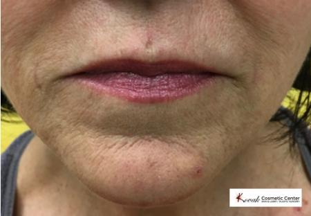 Injectables - Mouth: Patient 3 - After Image