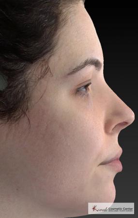 Venus Viva: Patient 4 - After Image 2