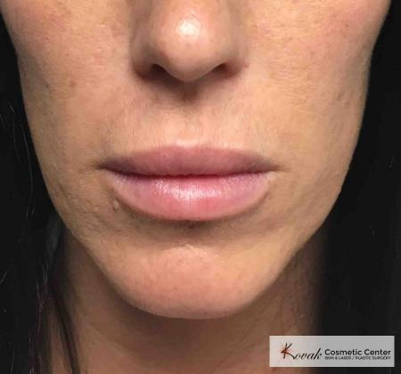 Injectables - Mouth: Patient 10 - After Image