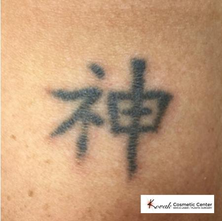 Tattoo Removal: Patient 2 - Before Image
