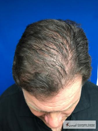 PRP For Hair Thinning: Patient 2 - Before Image