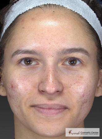 Venus Viva: Patient 3 - Before Image 4