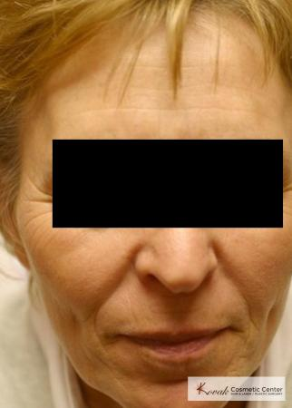 Tyte & Bryte Photorejuvenation of the face on 63 year old family - After Image