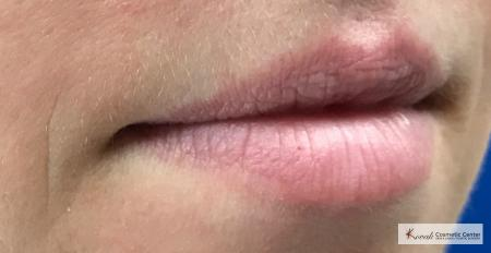 Lip Augmentation: Patient 2 - Before 2