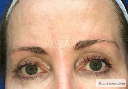 Upper eyelid treatment using Agnes on a 49 year old woman - After Image