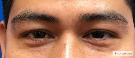 Restylane®: Patient 4 - After Image