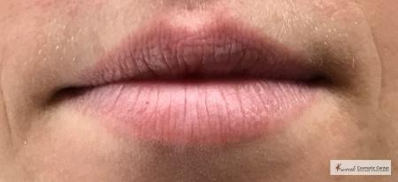 Lip Augmentation: Patient 2 - Before and After Image 3