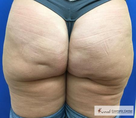 Cellulite Reduction: Patient 4 - After Image