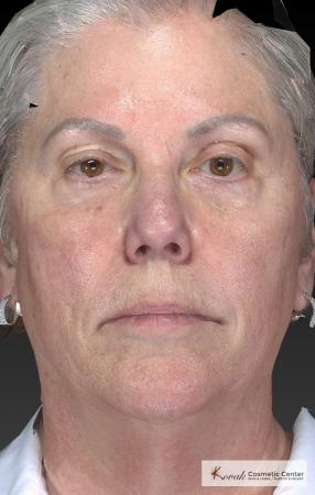 Tyte And Bryte – Face: Patient 5 - After Image