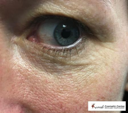 Eye Vein Treatment: Patient 2 - After Image