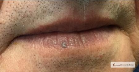 Lumps & Bumps: Patient 3 - Before Image