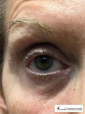 Modified Botox Brow Raise on a 64 year old Woman - After 2