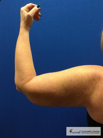 Laser Liposuction of the arms on a 42 year old woman - Before and After 2