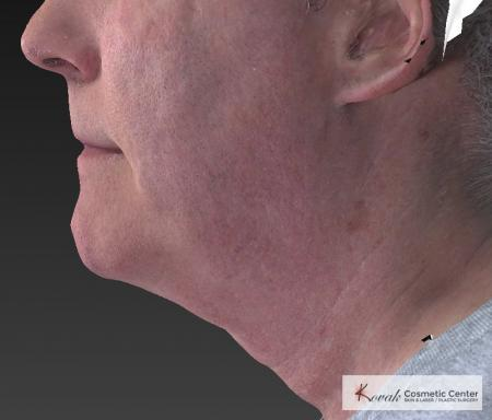 Kybella: Patient 4 - Before Image 2