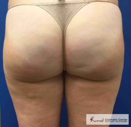 Cellulite Reduction: Patient 3 - After Image