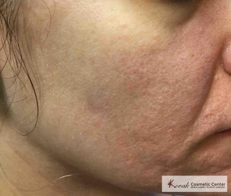 Acne Scars treated with Venus Viva on 35 year old woman - After Image 2