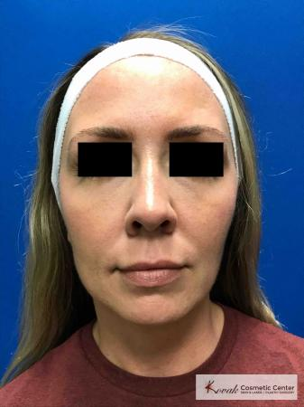 Injectables: Patient 7 - After Image