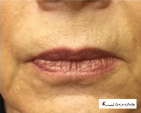 Restylane® Silk: Patient 8 - Before Image