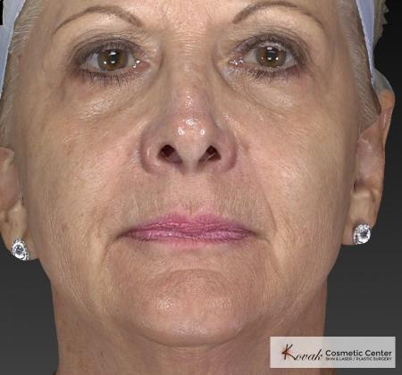 Injectables - Face: Patient 1 - After