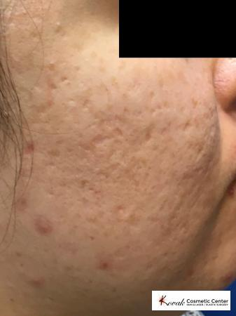 Acne Scars treated with Venus Viva on 30 year old female - Before Image