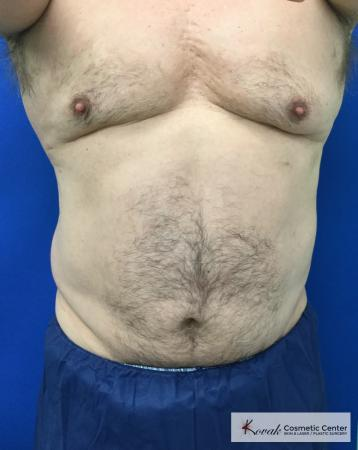 Slim Tyte: Patient 10 - After Image