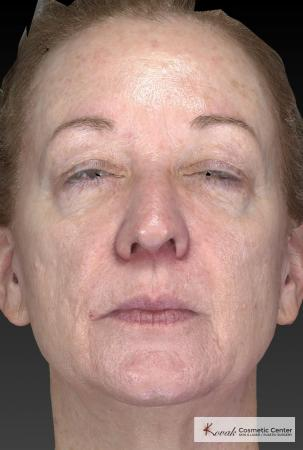 Tyte And Bryte – Face: Patient 6 - After Image